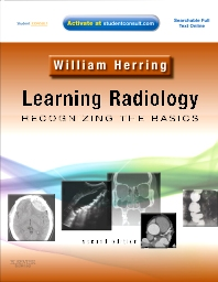 Cover image for Learning Radiology