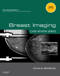 Breast Imaging: Case Review Series - 2nd Edition - ISBN: 9780323087223, 9780323091633