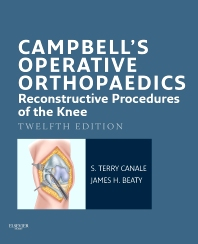 Campbell's Operative Orthopaedics: Reconstructive Procedures of the Knee E-Book - 12th Edition - ISBN: 9780323101356