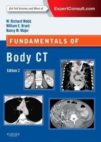 Fundamentals of Body CT, 4th Edition,W. Richard Webb,Wiliam Brant,Nancy Major,ISBN9780323221467