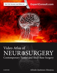 Cover image for Video Atlas of Neurosurgery