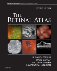 The Retinal Atlas - 2nd Edition - ISBN: 9780323287920, 9780323414807