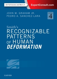 Smith's Recognizable Patterns of Human Deformation - 4th Edition - ISBN: 9780323294942, 9780323295383