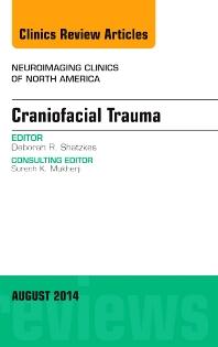 Craniofacial Trauma, An Issue of Neuroimaging Clinics - 1st Edition - ISBN: 9780323320184, 9780323320375