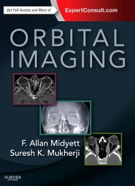 Orbital Imaging - 1st Edition - ISBN: 9780323340373, 9780323354271