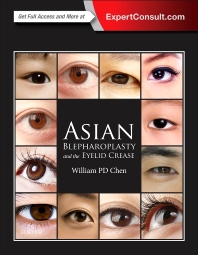 Cover image for Asian Blepharoplasty and the Eyelid Crease