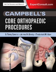 Cover image for Campbell's Core Orthopaedic Procedures