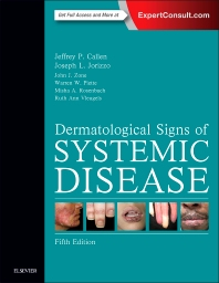 Dermatological Signs of Systemic Disease - 5th Edition - ISBN: 9780323358293, 9780323358309