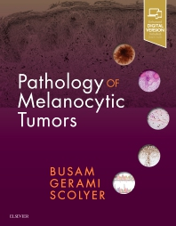Pathology of Melanocytic Tumors - 1st Edition - ISBN: 9780323374576, 9780323508681