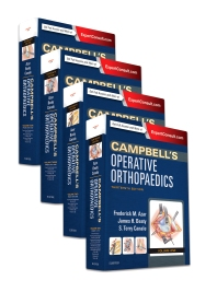 Campbell's Operative Orthopaedics, 4-Volume Set - 13th Edition - ISBN: 9780323374620, 9780323392570