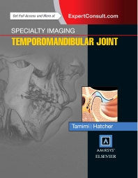 Specialty Imaging: Temporomandibular Joint - 1st Edition - ISBN: 9780323377041, 9780323442978