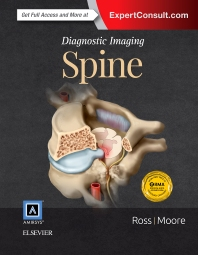 Diagnostic Imaging: Spine, 3rd Edition,Jeffrey Ross,Kevin Moore,ISBN9780323377058