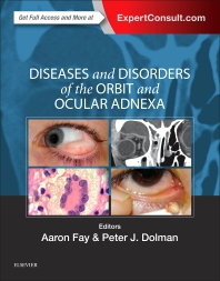 Cover image for Diseases and Disorders of the Orbit and Ocular Adnexa