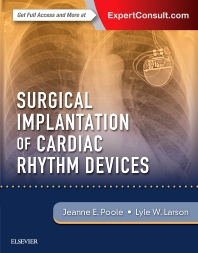 Cover image for Surgical Implantation of Cardiac Rhythm Devices
