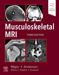 Musculoskeletal MRI - 3rd Edition - ISBN: 9780323415606, 9780323653565