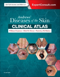 Cover image for Andrews' Diseases of the Skin Clinical Atlas