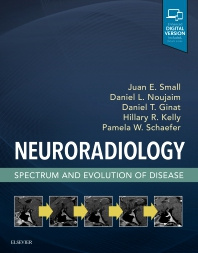 Neuroradiology: Spectrum and Evolution of Disease - 1st Edition - ISBN: 9780323445498, 9780323447256