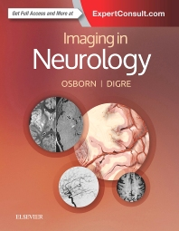 Cover image for Imaging in Neurology