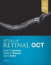 Cover image for Atlas of Retinal OCT: Optical Coherence Tomography