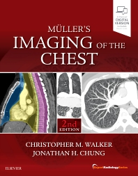 Muller's Imaging of the Chest - 2nd Edition - ISBN: 9780323462259, 9780323531801