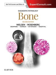 Diagnostic Pathology: Bone - 2nd Edition - ISBN: 9780323477772, 9780323509275