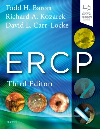 Cover image for ERCP