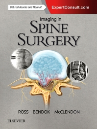 Cover image for Imaging in Spine Surgery