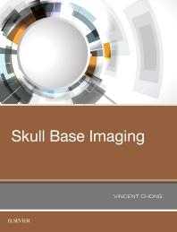 Skull Base Imaging - 1st Edition - ISBN: 9780323485630, 9780323496049