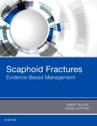 Scaphoid Fractures - 1st Edition - ISBN: 9780323485647, 9780323496056