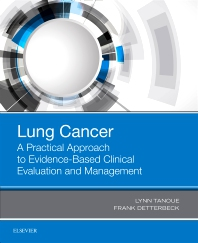 Cover image for Lung Cancer: A Practical Approach to Evidence-Based Clinical Evaluation and Management