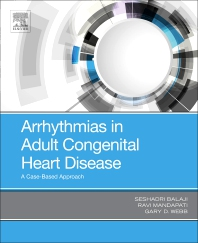 Cover image for Arrhythmias in Adult Congenital Heart Disease