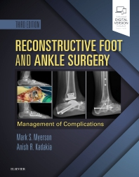 Cover image for Reconstructive Foot and Ankle Surgery: Management of Complications