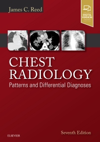 Chest Radiology - 7th Edition - ISBN: 9780323498319, 9780323510219