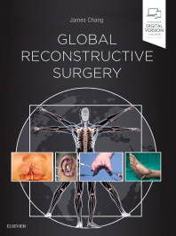Cover image for Global Reconstructive Surgery