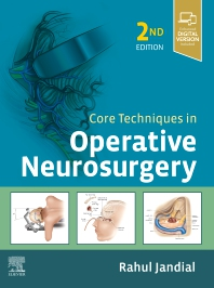 Core Techniques in Operative Neurosurgery - 2nd Edition - ISBN: 9780323523813, 9780323523967