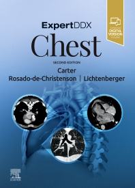 Cover image for ExpertDDx: Chest