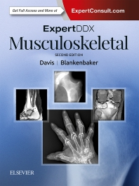 ExpertDDx: Musculoskeletal - 2nd Edition - ISBN: 9780323524834, 9780323548182