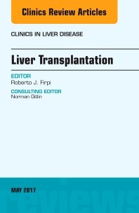 Liver Transplantation, An Issue of Clinics in Liver Disease - 1st Edition - ISBN: 9780323528443, 9780323528450