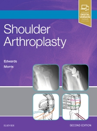 Shoulder Arthroplasty - 2nd Edition - ISBN: 9780323529402, 9780323531641