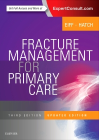 Cover image for Fracture Management for Primary Care Updated Edition