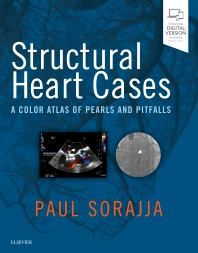 Structural Heart Cases - 1st Edition - ISBN: 9780323546959, 9780323550918