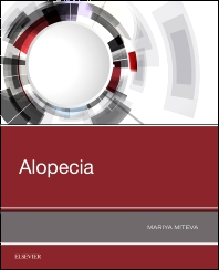 Alopecia - 1st Edition - ISBN: 9780323548250