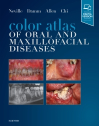 Cover image for Color Atlas of Oral and Maxillofacial Diseases