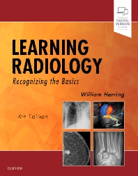 Learning Radiology - 4th Edition - ISBN: 9780323567299, 9780323567282