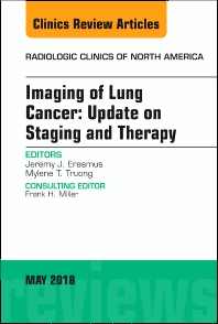 Cover image for Lung Cancer, An Issue of Radiologic Clinics of North America