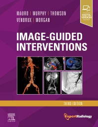 Image-Guided Interventions - 3rd Edition - ISBN: 9780323612043