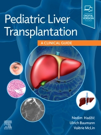 Cover image for Pediatric Liver Transplantation