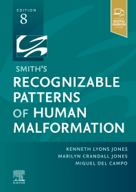 Smith's Recognizable Patterns of Human Malformation - 8th Edition - ISBN: 9780323638821, 9780323638838