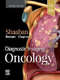 Cover image for Diagnostic Imaging: Oncology