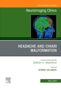 Cover image for Headache and Chiari Malformation, An Issue of Neuroimaging Clinics of North America
